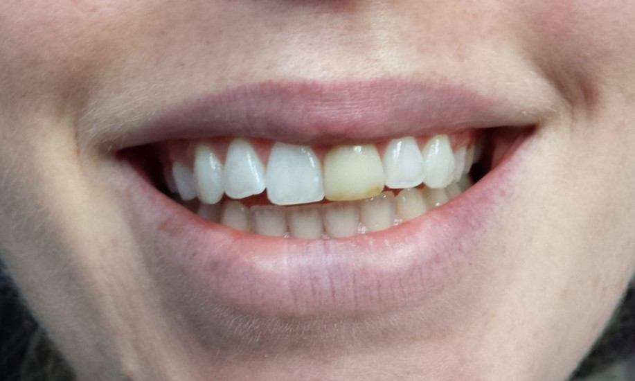 Andrew K Thompson Dds Our Services Before And After