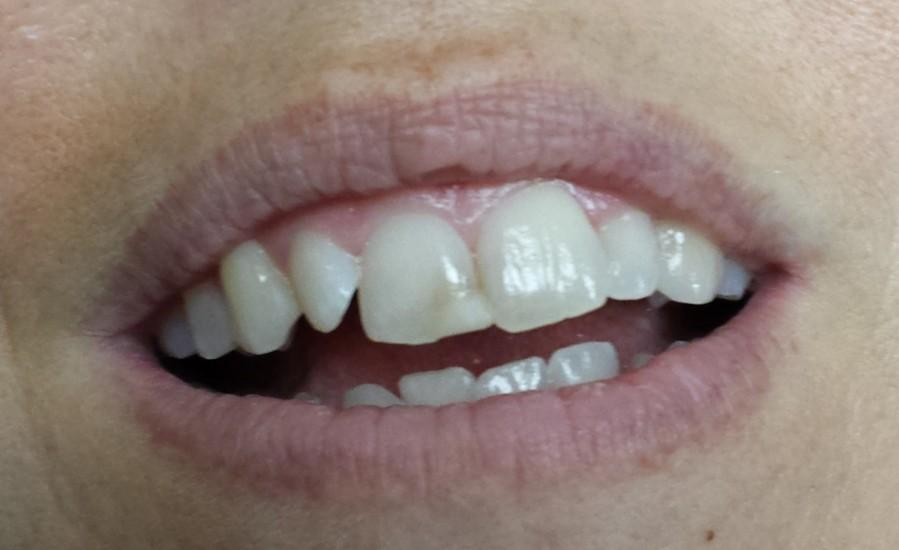 dental filling front teeth - photo #8